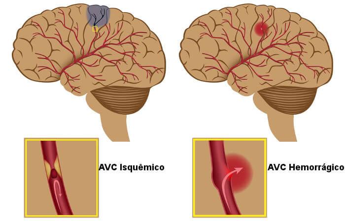 O AVC pode ocorrer na forma isquêmica ou hemorrágica.