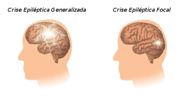 Tipos de crises epilépticas