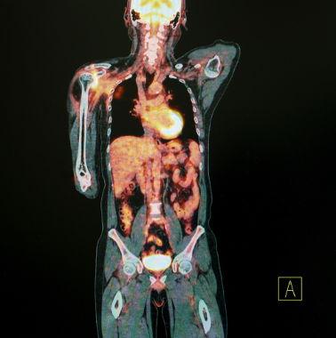 Imagem obtida a partir de uma tomografia por emissão de pósitrons