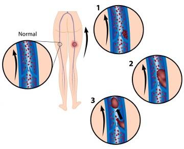 Observe na figura a formação do trombo (1 e 2) e sua posterior migração (3)