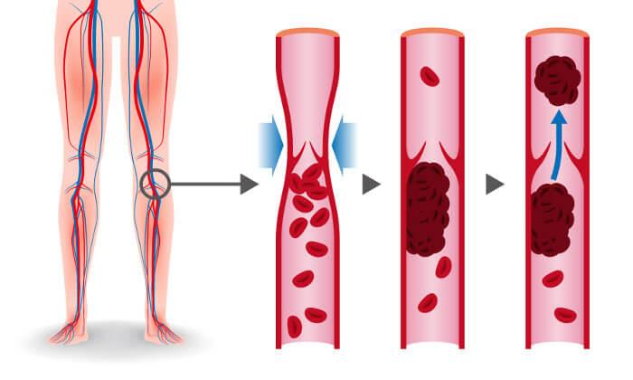Na embolia pulmonar, a maioria dos trombos é proveniente do sistema venoso profundo dos membros inferiores.