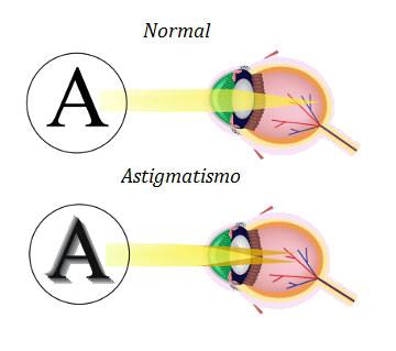 Observe a diferença entre a visão de uma pessoa com olho normal e de outra com astigmatismo
