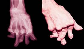 Manifestação da artrite reumática.