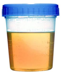 A hematúria é identificada por meio da urina