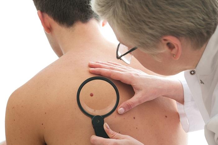 Ao perceber alguma alteração na pele, procure rapidamente o dermatologista