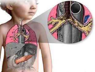Fibrose Cística: evidenciando o acúmulo de secreção no sistema respiratório.