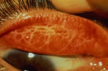 Lesão na pálpebra característica do tracoma.