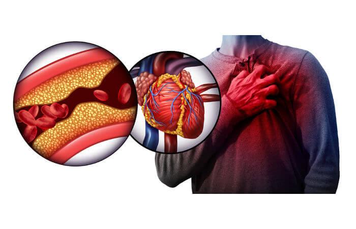O infarto ocorre como consequência da interrupção do fluxo sanguíneo para o coração.