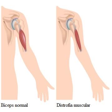 Detalhe de um músculo normal e um com distrofia muscular. Na distrofia, ocorre a atrofia e fraqueza dos músculos