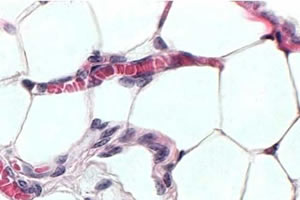 Adipócitos localizados no ovário.
