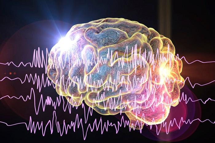 As convulsões acontecem em decorrência de uma anormalidade na atividade elétrica cerebral.