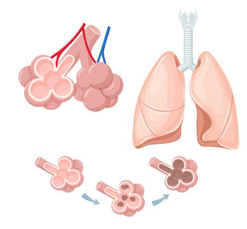 Observe como o enfisema pulmonar destrói gradativamente os alvéolos pulmonares