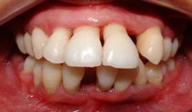 A periodontite é uma das principais causas relacionadas à perda de dentes
