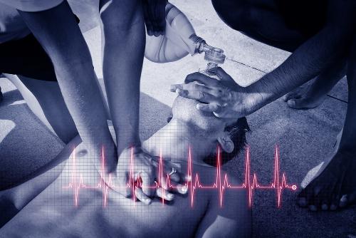 As causas da parada cardiorrespiratória são várias