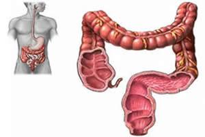 É no intestino grosso que ocorre o processo da colonterapia.