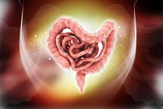 Câncer do intestino pode causar hemorragia digestiva.