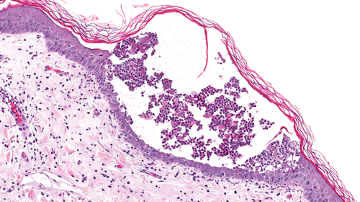 Observe a lesão causada pelo pênfigo foliáceo