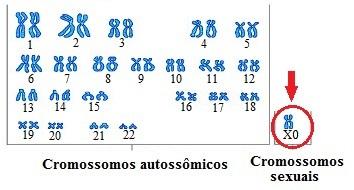 Observe o cariótipo de uma pessoa com Síndrome de Turner. Nesse caso, há apenas um cromossomo sexual X