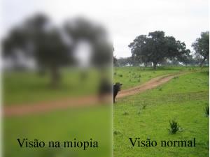 A pessoa que apresenta Miopia não consegue enxergar nitidamente objetos distantes dela