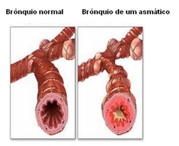 Os asmáticos apresentam uma inflamação nos brônquios.