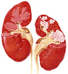 Os rins são essenciais para a excreção!
