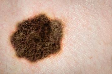 Manchas escuras na pele que mudam de cor e forma podem ser sinais de melanoma