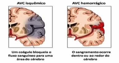 Existem dois tipos de AVC: o AVC isquêmico e o AVC hemorrágico