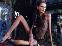 Modelo vítima da anorexia
