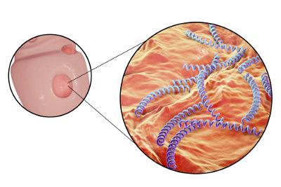 A sífilis é uma doença causada pela bactéria Treponema pallidum