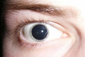 Pupila dilatada, um dos efeito do LSD.