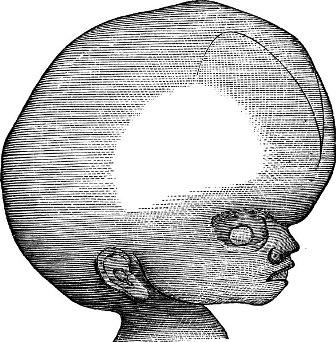 O termo hidrocefalia indica água na cabeça e está relacionado com o acúmulo de líquido cefalorraquidiano