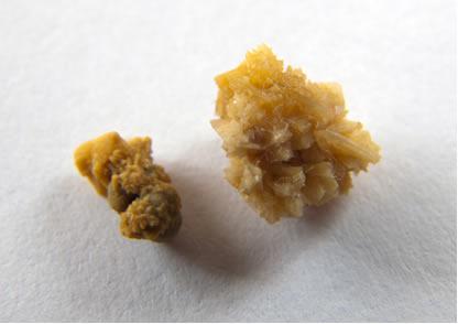 O etanodiato de cálcio, mais conhecido como oxalato de cálcio, é o principal componente das pedras nos rins ou cálculos renais