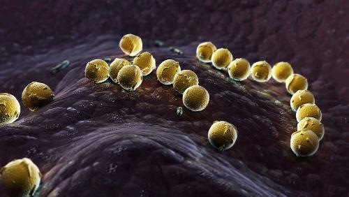 A Síndrome do Choque Tóxico é desencadeada por toxinas produzidas por bactérias
