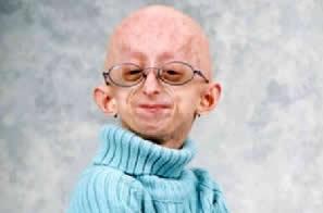 Criança portadora de progeria