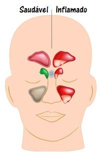 A sinusite é caracterizada por uma inflamação da mucosa dos seios paranasais