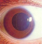 Síndrome de Marfan, um caso de pleiotropia.