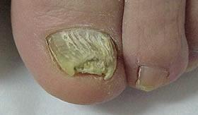 A micose provoca deformação das unhas.