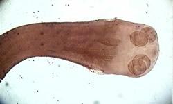 Imagem da tênia vista por um microscópio