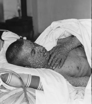 Observe as lesões causadas pela varíola