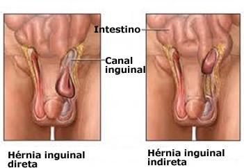 A hérnia inguinal é uma situação mais frequente em homens