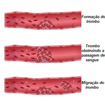 Observe a formação do trombo nos vasos sanguíneos e sua migração