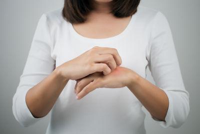 As lesões da disidrose podem causar coceira