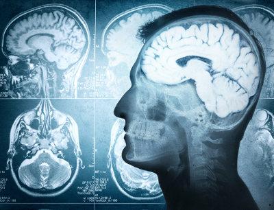O cérebro é uma parte do encéfalo