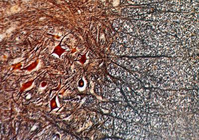 O tecido nervoso está relacionado com a percepção do meio interno e externo