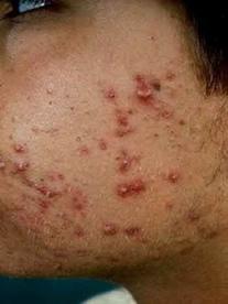 Acne: doença de pele que acomete homens e mulheres na adolescência.