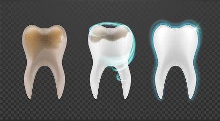 A limpeza dos dentes evita problemas como as cáries