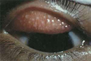 Lesões na pálpebra: características do tracoma.