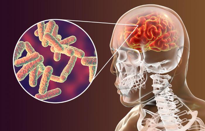 A meningite é uma doença que pode ser causada por bactérias e afeta as meninges, membranas que envolvem o sistema nervoso.