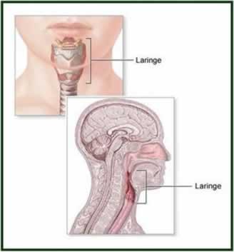 O câncer de laringe é mais comum entre homens