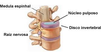 Entre as vértebras há uma estrutura cartilaginosa chamada de disco invertebral